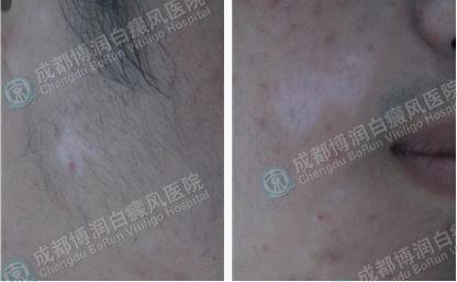 男性面部散发型白癜风2个月